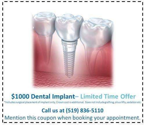 Dental Implants in Guelph $1000