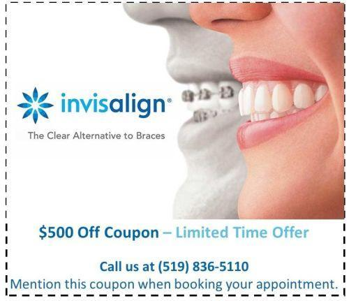 Invisalign Guelph Special $500 Off