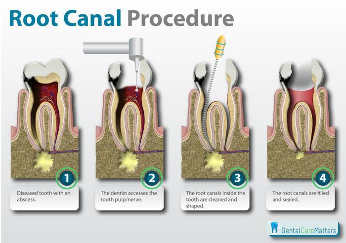 Root Canal Procedure in Gueph, ON N1G 3M2