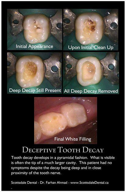 Decay on Biting Surface - Guelph - Scottdale Dental