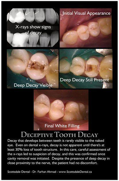 Cavity Between Teeth - Why x-rays are important - Guelph