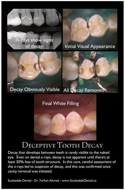 Deep Decay Betwen Teeth - Xrays - Guelph
