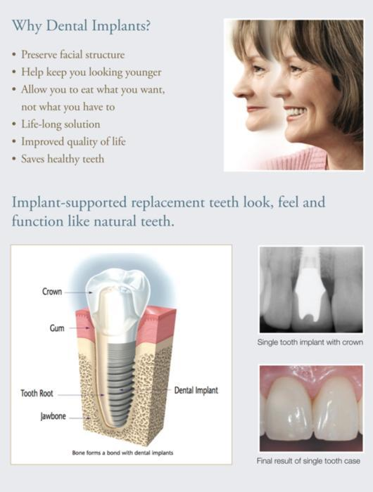 Guelph Dental Implants
