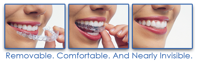 Invisalign Invisble Braces 3 steps