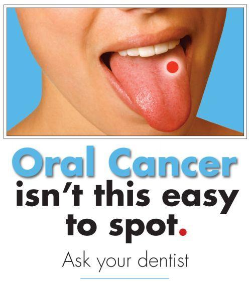 Oral Cancer Guelph Dentist