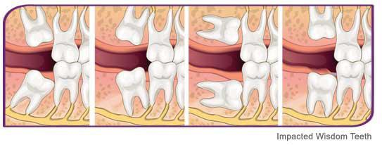 Guelph Wisdom Teeth Extraction Guelph ON N1G 3M2