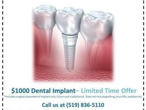 $1000 Dental Implants in Guelph