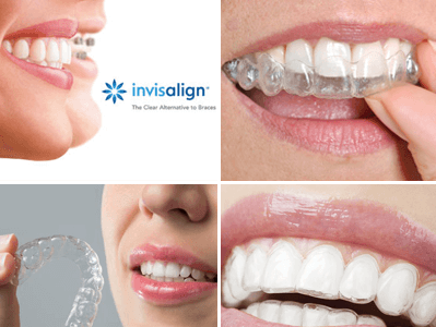 Invisalign Guelph